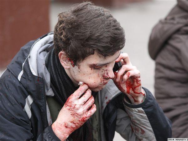 惊魂未定的受伤者打电话给家人报平安