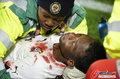 加纳队友相撞血溅赛场