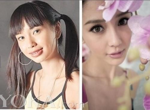 韩国女星整容成瘾一整年轻20岁