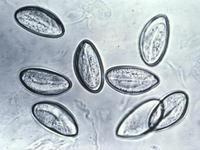 人体十大寄生害虫:绦虫可在人肚子里活25年