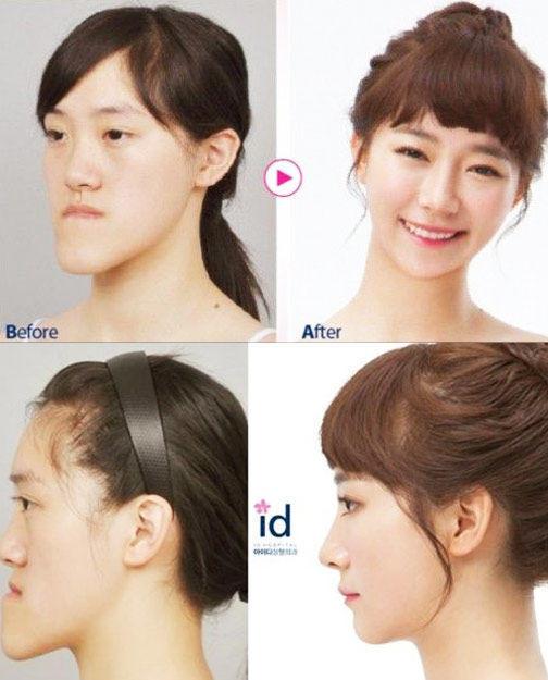 组图:韩国整容节目选手对比照 见证奇迹的时刻 - 何记茶轩 - 何记茶轩