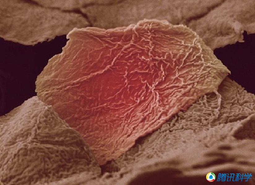 皮肤水泡.-显微镜下的人体微景观 美丽而恐怖