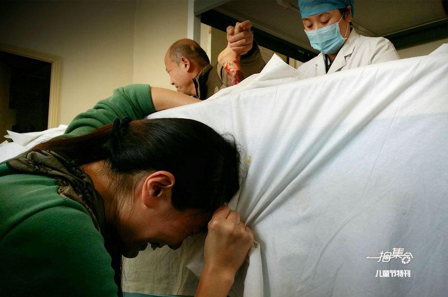 """桶烫伤""""的3岁男童陈烁宇第一次植皮手术后换药,面对孩子血肉模"""