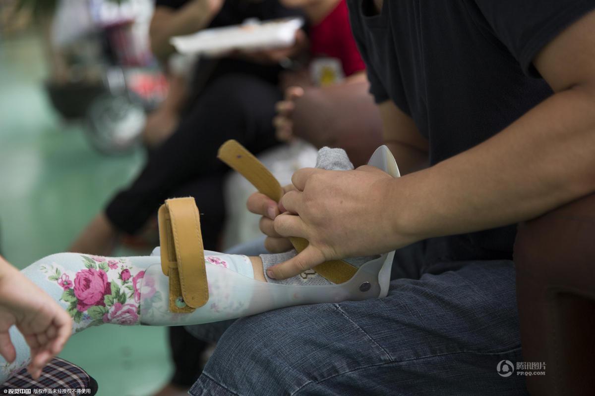 小腿肌肉萎缩怎么治疗