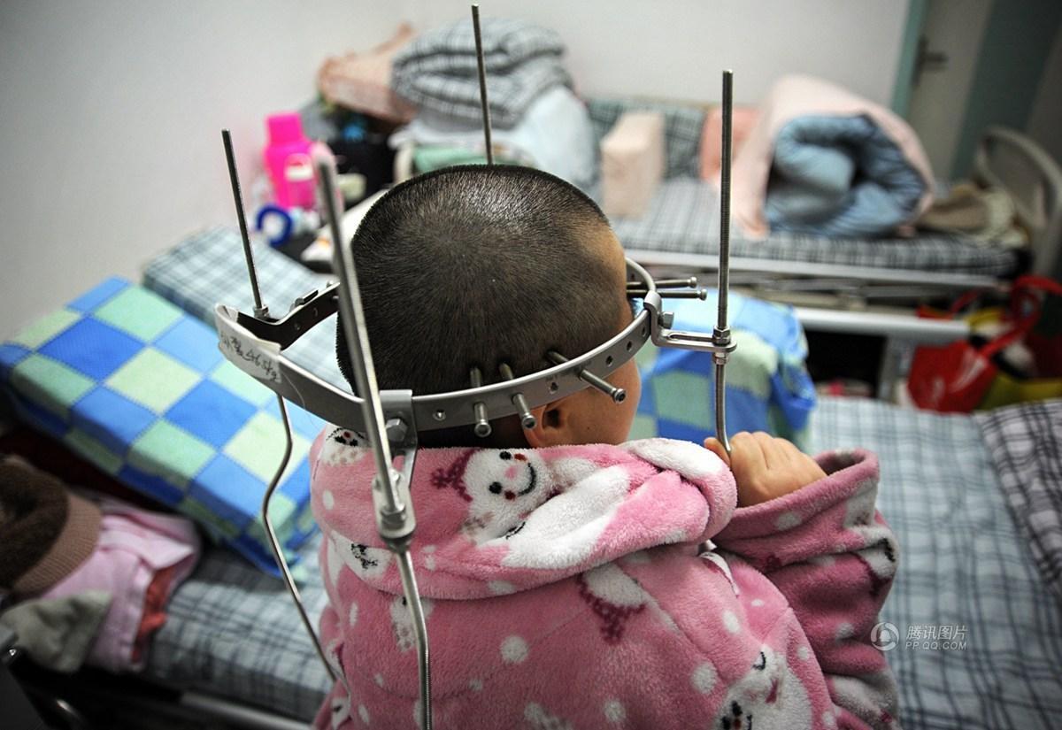 """脊柱侧弯患者被称""""天线宝宝"""" 钉子穿过头皮图片"""