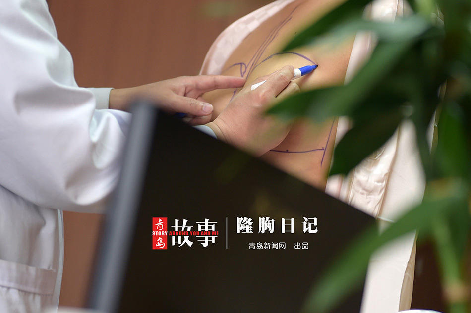 青岛90后模特瞒着爸爸做隆胸手术 A杯升到C杯