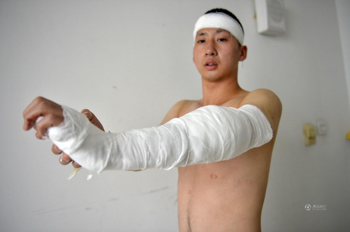 沈阳小伙喝止偷包贼被砍断手臂肌腱 图