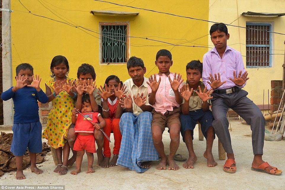 【图片新闻】印度一家族25口人均有六指六趾 总共600只 - 耄耋顽童 - 耄耋顽童博客 欢迎光临指导