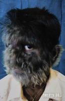 盘点人类最罕见的病变:树人狼人和无色人种