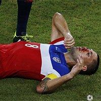 邓普西鼻子被踢伤鲜血直流