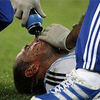 萨巴莱塔面部受伤血染赛场
