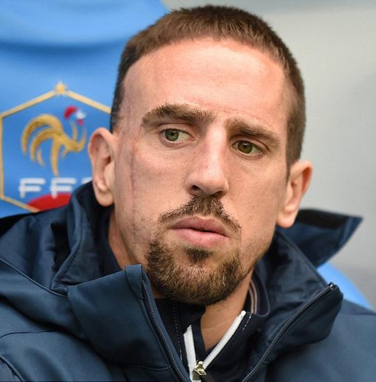 法国传惊天噩耗!里贝里恐因背伤缺席世界杯