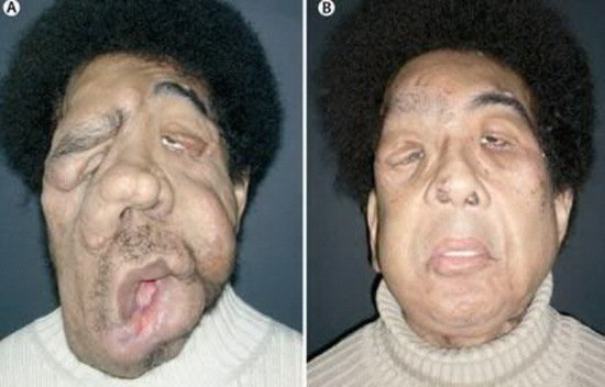 facial disfigurement dating 5 things not to do to a person with deformity dating, marriage deformity disabled amputee facial disfigurement disfigurement.