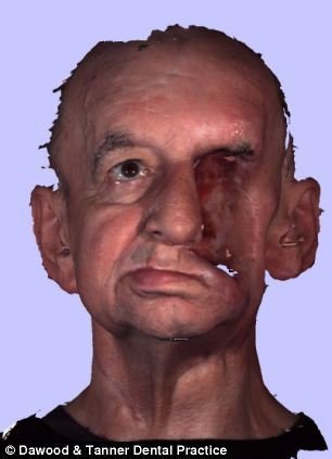 3D printing facial reconstruction surgery eligible newborn 6313098_1200x1000_0