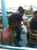 组图:厦门BRT公交事故乘客被严重烧伤