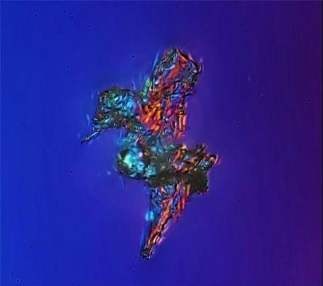 通过显微镜看北京霾颗粒放大1000倍 - 健康之路 - 生活与健康