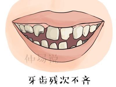 牙齿颗数看富贵长寿