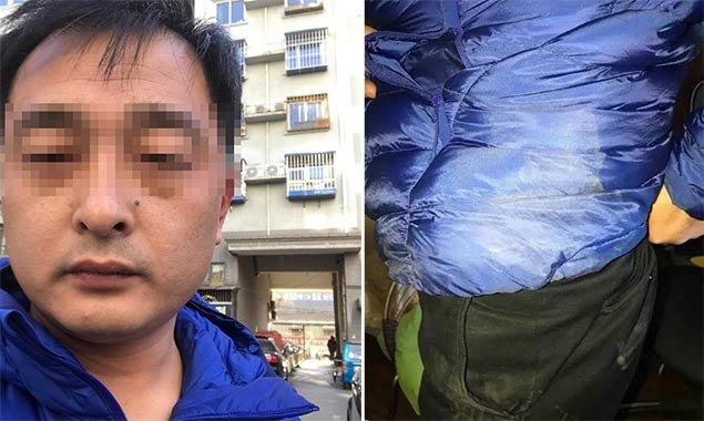 北京一律师小区门口遭多名陌生男子殴打