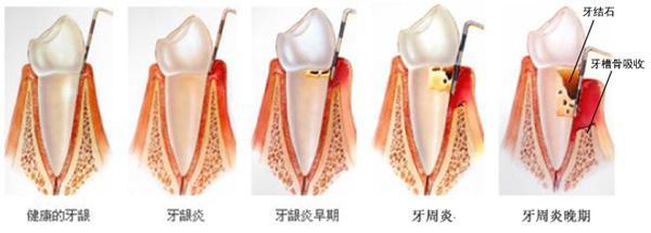 如果不对炎症和口腔的刺激因素进行控制,牙龈炎会进一步发展为牙周炎