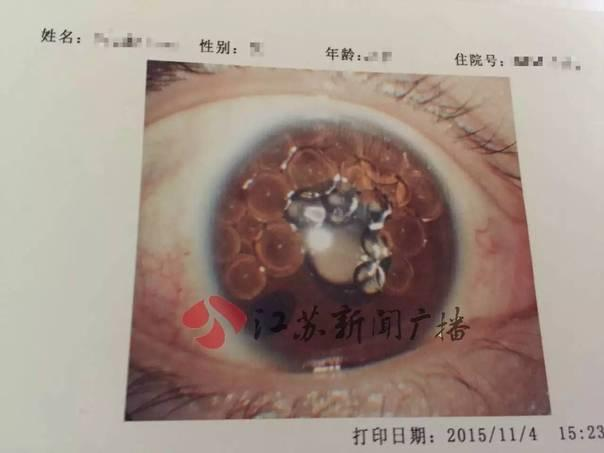 """北医三院18人因""""问题气体""""单眼失明"""