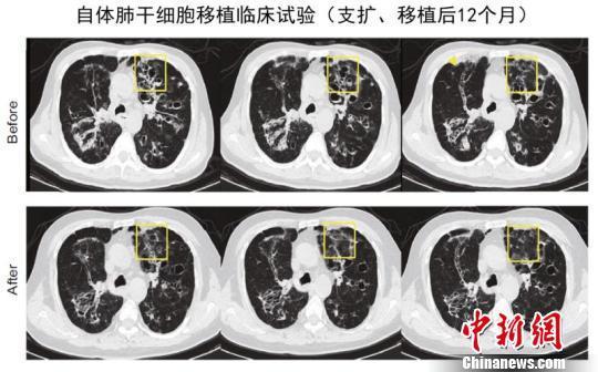 同济大学研究团队实现全球首例人类肺脏再生