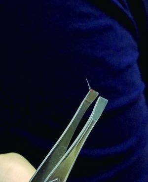 手机钢化膜碎裂扎伤脸 销售商称钢化膜属消耗品不保修
