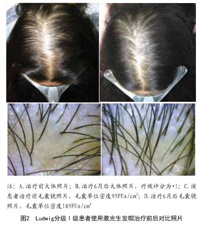 美国研发出Cpaillus激光帽子,戴上后头发越来越浓密!
