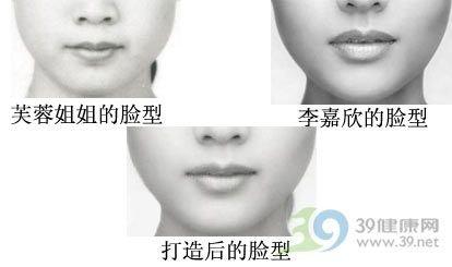 从口腔内将整个面部皮肤和肌肉翻开,将肌肉与骨膜进行分离,把需要手术