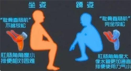 装修卫生间:马桶和蹲厕如何选择 看完你就明白了