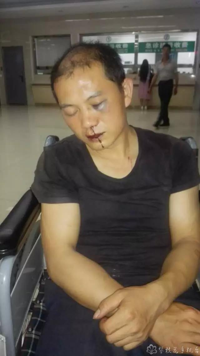 攀枝花一环卫工与他人发生口角 被2女1男殴打