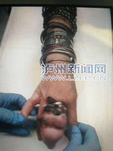 泸州老太手上戴30余只铁圈致手指肿胀 消防午夜救援