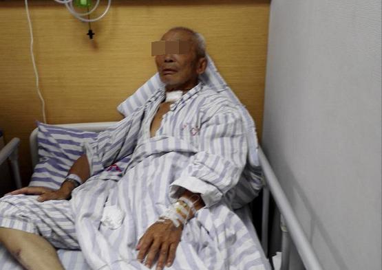 87岁大爷罹患喉癌 3小时高难手术救了他一命