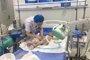 两岁男孩掉进开水锅中全身大面积烧伤 众人心痛