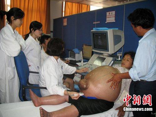 湖南一妇女肚子直径15米