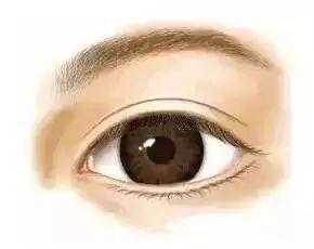 双眼皮一共分几种 想变双眼皮要注意这些事项