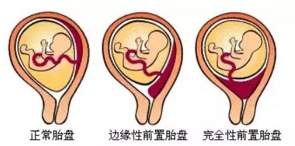 48分钟高危产妇经历夺命惊魂 瘢痕子宫、胎儿横位,安琪儿产妇抢救实录