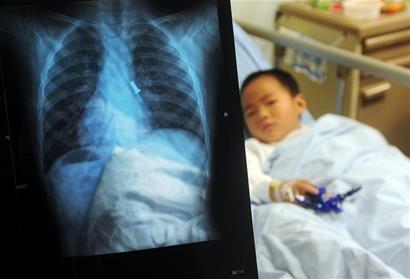 """3岁半男孩吞直径5cm螺丝钉 钳子""""肺里捞钉"""""""
