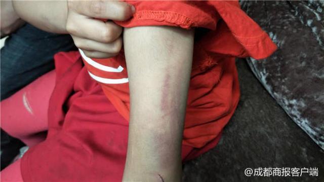 南充8岁女童被母亲及同居男友殴打 警方妇联介入