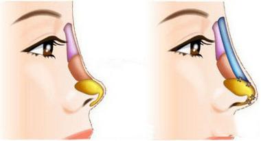 原来隆鼻手术这样做 隆鼻后简直拥有了全世界