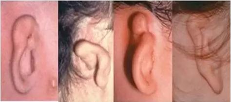 """14岁男孩先天小儿畸形 医生取肋骨""""再造""""新耳朵"""