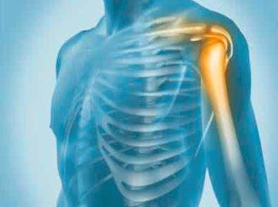 【科普】球员如何摆脱肩关节脱位困扰