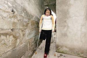 女性截肢图 女性截肢慕残图片