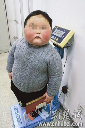 4岁小胖墩超重70斤 辗转求减肥(图)