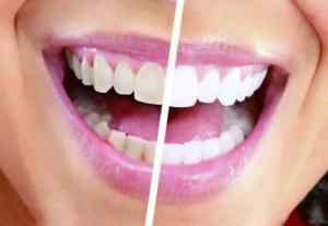 牙齿黄黄笑不出 如何消灭满口大黄牙?