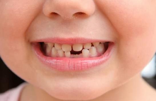 儿童龃齿:如何有效预防孩子蛀牙?