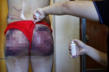 25岁小伙见网友遭仙人跳 遭拘禁勒索臀部被打紫