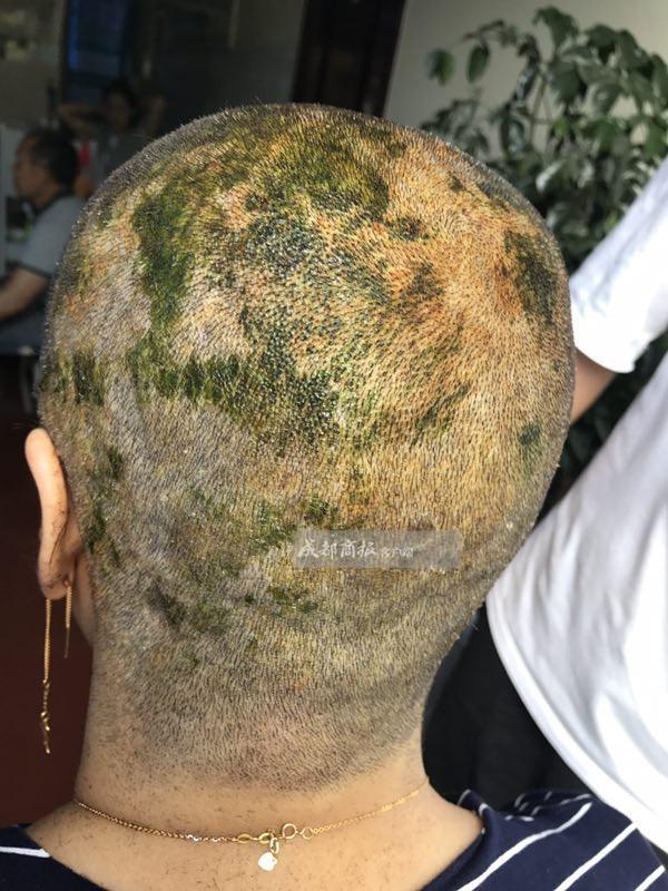 7小时染发4次变苹果绿 女子休克入院秀发被剃光