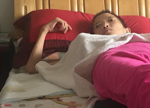 乳腺癌患者偏方自救 肿瘤变成皮球大小才去医院