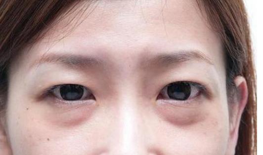 被你忽视的眼袋问题,很可能会引起这些眼疾