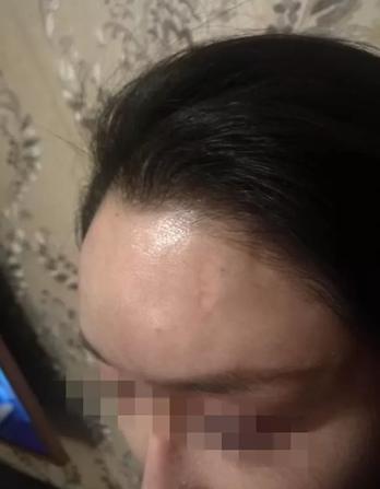 """女模特额头被砸个坑 称""""我刚打的10支玻尿酸"""""""